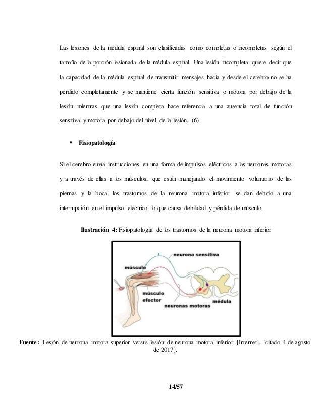 Trastornos de la neurona motora inferior
