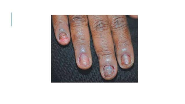La psoriasis. Las causas de la psoriasis