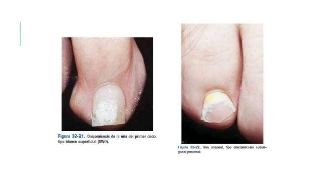 Como curar el hongo de las uñas de los pies por el vinagre