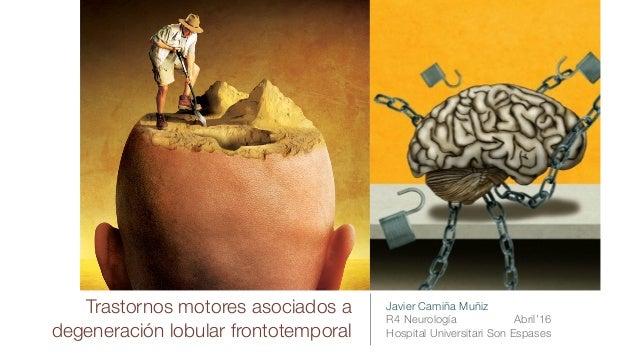 Trastornos motores asociados a degeneración lobular frontotemporal Javier Camiña Muñiz R4 Neurología Abril'16 Hospital Uni...