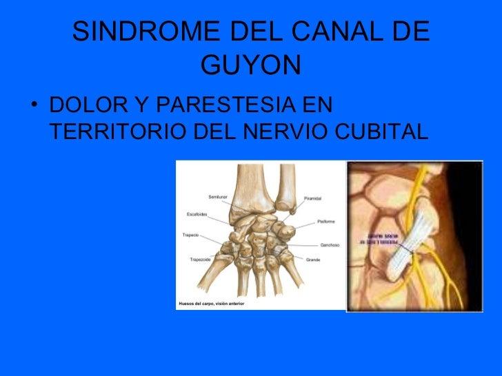Sindrome del Tunel del Carpo Es la compresión del nervio mediano que se presenta por debajo del ligamento transverso del c...