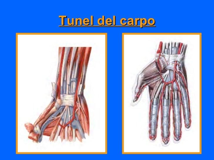 Etiología•   Predisposición genética•   Traumática•   Artritis reumatoide•   Hipotiroidismo, Gota tofacea•   Retención de ...