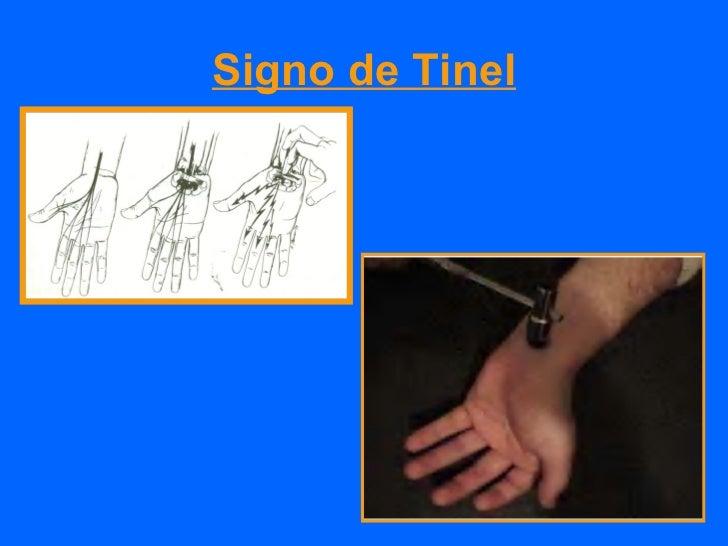 Fisiopatología            Aumento presión venosaEstasis venosa           Edema IntrafascicularIsquemia             Anoxia ...