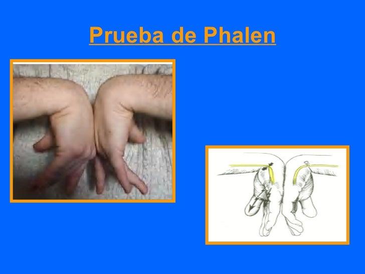 Tratamiento quirúrgico• Persistencia de sintomas mas 12  meses• Deficit sensitivo motor  progresivo• Atrofia muscular• Les...