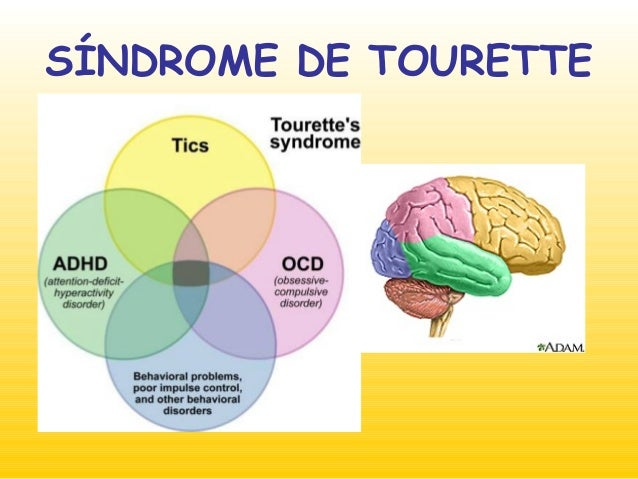 Resultado de imagen de sindrome de tourette cerebro