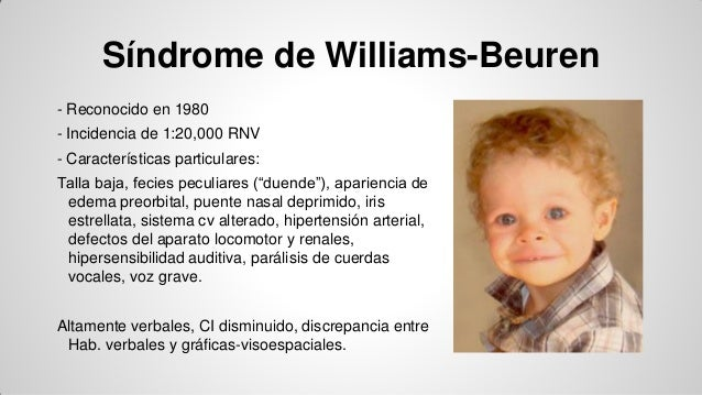 williams beuren syndrome essay