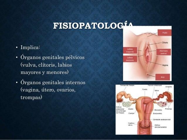 FISIOPATOLOGÍA • Implica: • Órganos genitales pélvicos (vulva, clítoris, labios mayores y menores) • Órganos genitales int...