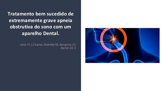 Tratamento bem sucedido de extremamente grave apneia obstrutiva do sono com um aparelho Dental. Haviv Y1, L2 Kamer, Sheinf...
