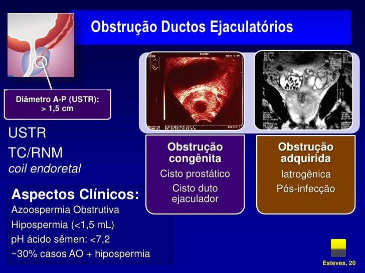 sperm granuloma treatment steroid
