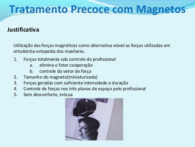 Tratamento precoce com magnetos Slide 2