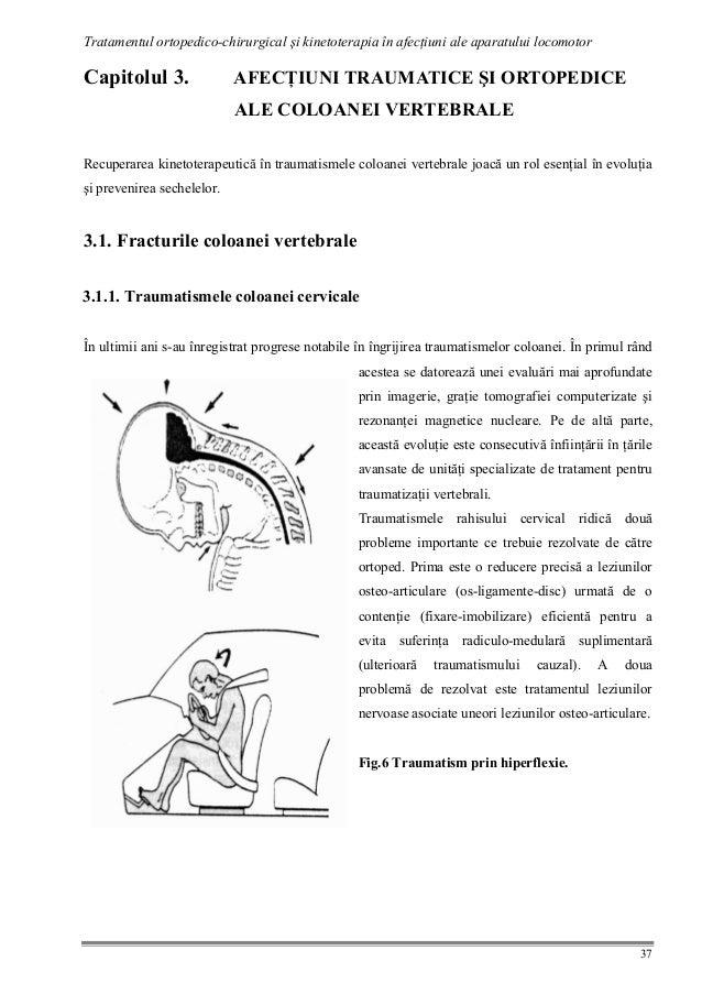 Tragand dureri de spate in timpul sarcinii 37 de saptamani