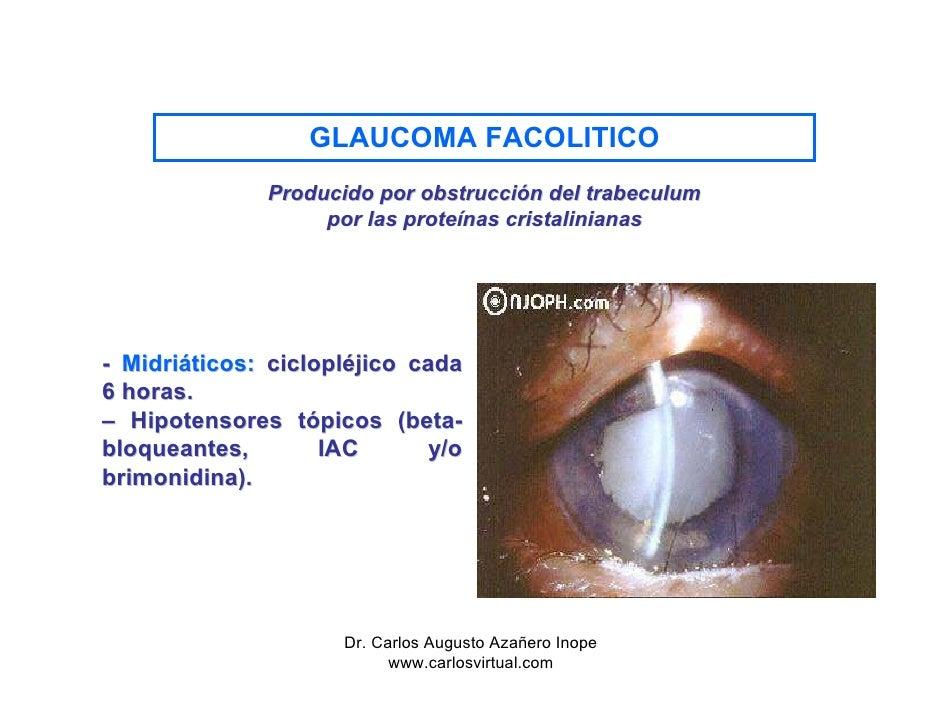 Tratamiendo Del Glaucoma Agudo