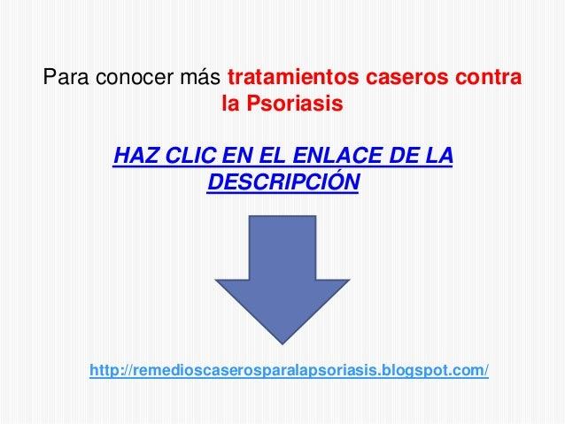 Para conocer más tratamientos caseros contrala PsoriasisHAZ CLIC EN EL ENLACE DE LADESCRIPCIÓNhttp://remedioscaserosparala...