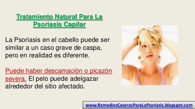 Tratamiento Natural Para La Psoriasis Capilar La Psoriasis en el cabello puede ser similar a un caso grave de caspa, pero ...