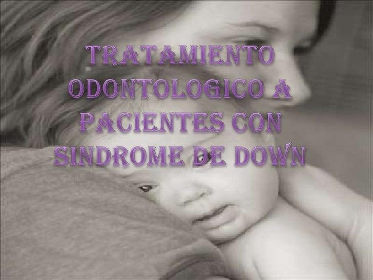 Tratamiento odontologico a  pacientes con sindrome de down<br />