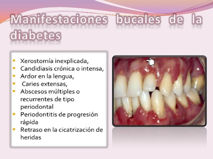 Tratamiento Odontologico En Pacientes Con Diabetes Mellitus