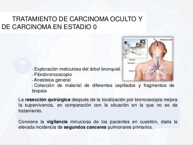 Tratamiento para el cancer de pulm n - Tratamiento para carcoma ...