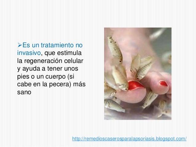 Tratamiento para la psoriasis con peces Slide 3
