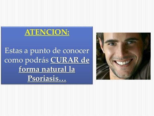 ATENCION: Estas a punto de conocer como podrás CURAR de forma natural la Psoriasis…
