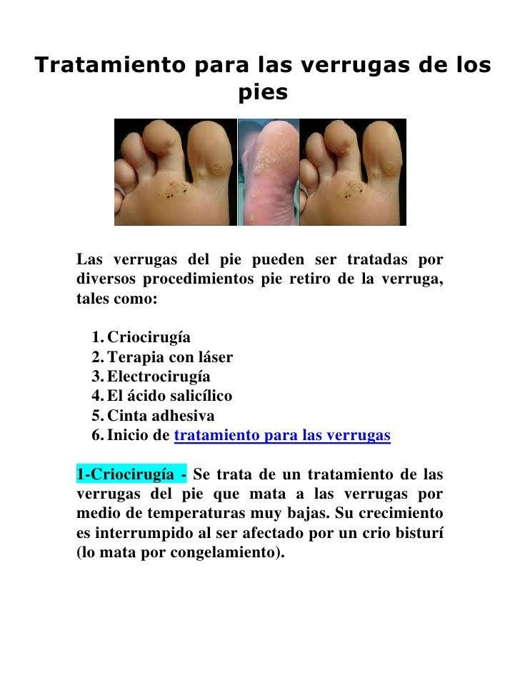Tratamiento para las verrugas de los               pies   Las verrugas del pie pueden ser tratadas por   diversos procedim...