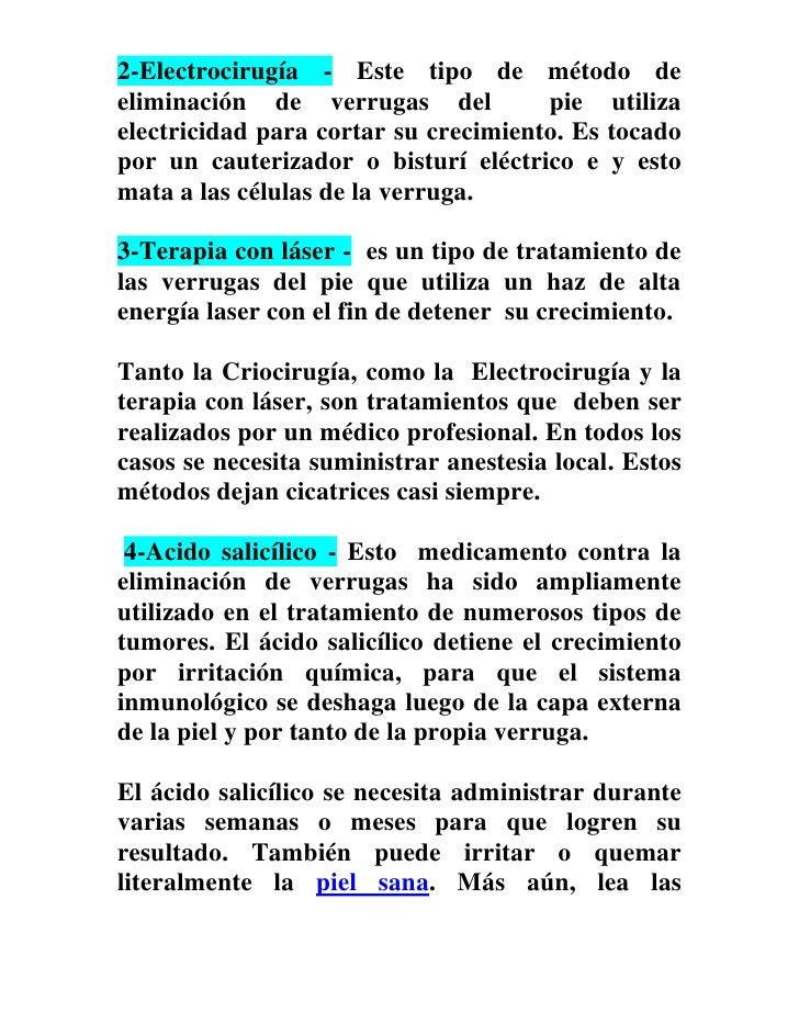 2-Electrocirugía - Este tipo de método deeliminación de verrugas del           pie utilizaelectricidad para cortar su crec...