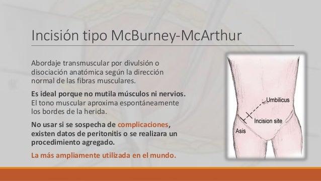 Incisión tipo McBurney-McArthur Abordaje transmuscular por divulsión o disociación anatómica según la dirección normal de ...