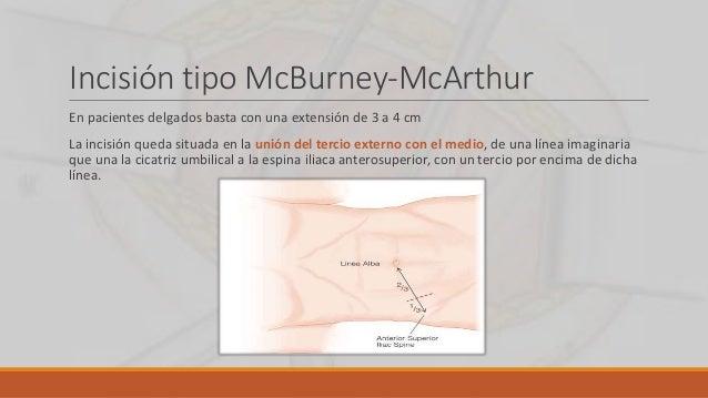 Incisión tipo McBurney-McArthur En pacientes delgados basta con una extensión de 3 a 4 cm La incisión queda situada en la ...