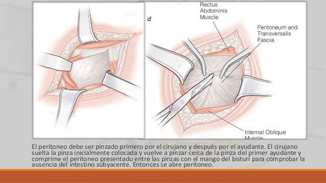 Incisión de Roux Alto índice de eventraciones y dehiscencias. Dolor postquirúrgico. Se inciden de forma oblicua el plano m...