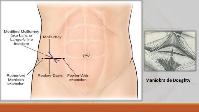 Incisión de Jalaguier-Battle La incisión cutánea es vertical, a nivel del borde externo del recto anterior. La aponeurosis...