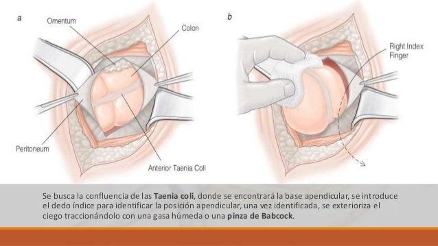 Se pasa una pinza de Kelly roma y curva a travez del meso apendicular, que permite la entrada de una segunda pinza, se pin...
