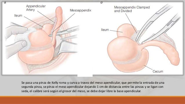 Tratamiento del muñón apendicular Sin invaginación El contenido de la base apendicular se exprime con una pinza de Kocher ...