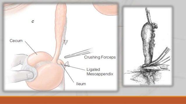 Tratamiento del muñón apendicular Con invaginación Técnica de Halsted Se prepara una invaginación con una sutura de reabso...