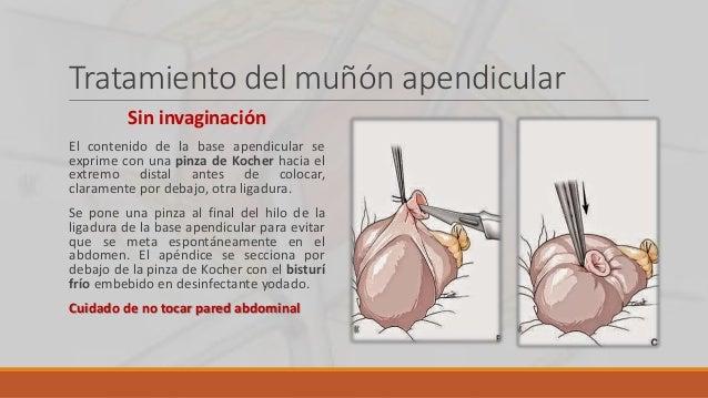 Técnica con clip hemostático Se utiliza en los casos de necrosis de la base del ciego, cuando se hace necesaria realmente ...