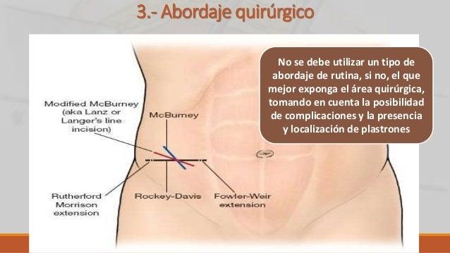 3.- Abordaje quirúrgico No se debe utilizar un tipo de abordaje de rutina, si no, el que mejor exponga el área quirúrgica,...