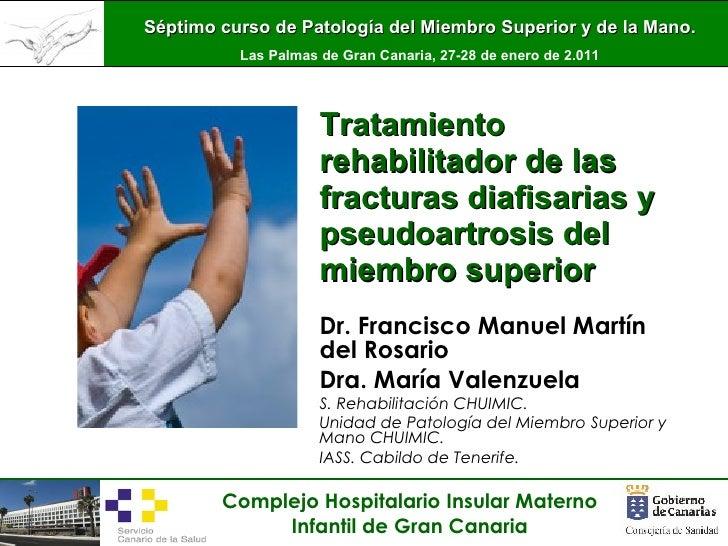 Tratamiento rehabilitador de fracturas diafisarias de mmss