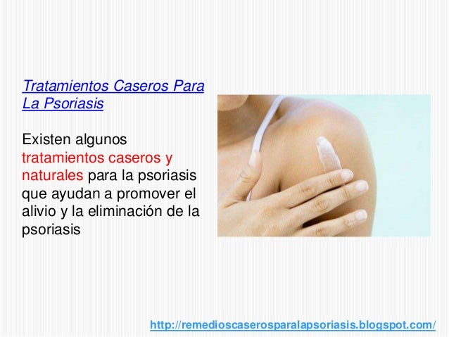 Tratamientos Caseros ParaLa PsoriasisExisten algunostratamientos caseros ynaturales para la psoriasisque ayudan a promover...
