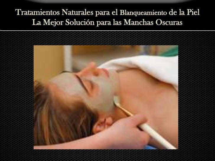 Tratamientos Naturales para el Blanqueamiento de la Piel<br />La Mejor Solución para las Manchas Oscuras<br />