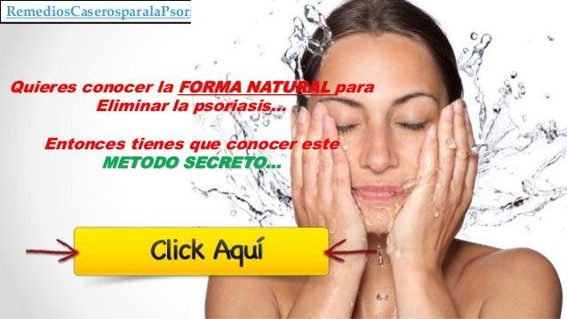 RemediosCaserosparalaPsoriasis.blogspot.com Quieres conocer la FORMA NATURAL para Eliminar la psoriasis… Entonces tienes q...