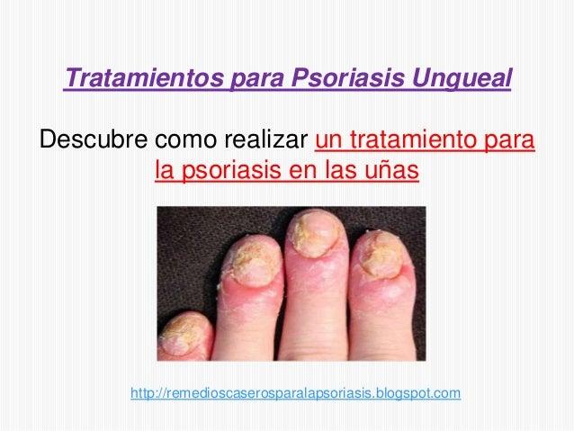 Tratamientos para Psoriasis UnguealDescubre como realizar un tratamiento parala psoriasis en las uñashttp://remedioscasero...