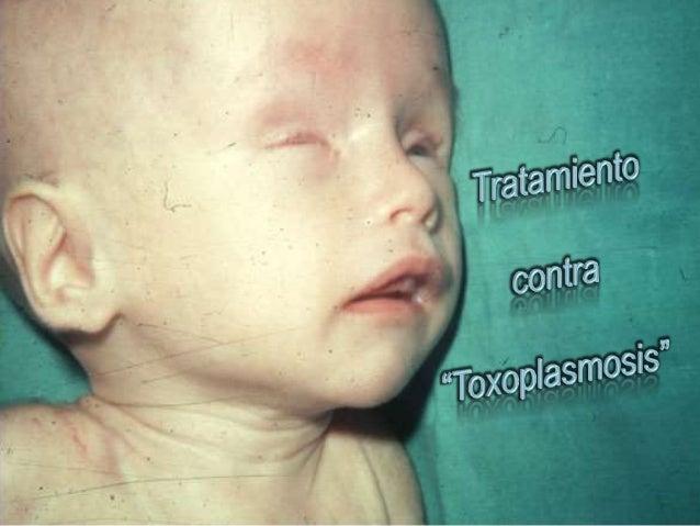  El tratamiento utilizado frente a la Toxoplasmosis son básicamente antibióticos: Sulfamidas Clindamicina Naftoquinolo...