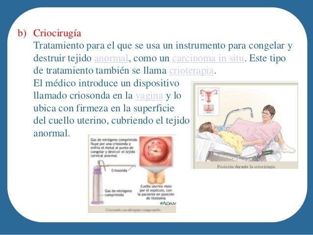 image Tratamiento radical en el consultorio del médico