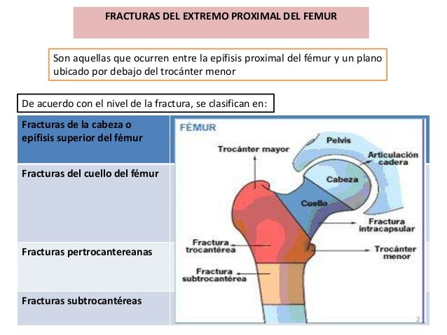 FRACTURAS DEL EXTREMO PROXIMAL DEL FEMUR