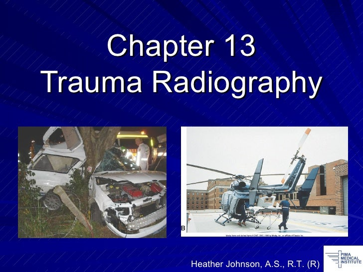 Chapter 13 Trauma Radiography Heather Johnson, A.S., R.T. (R)