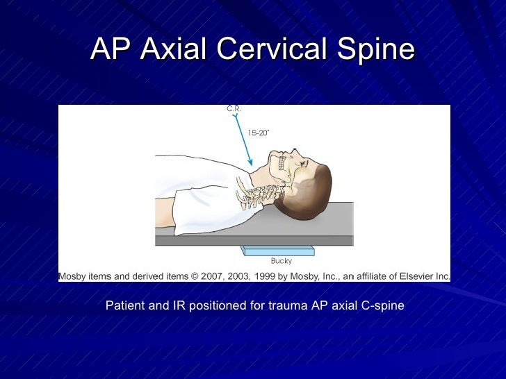 AP Axial Cervical Spine Patient and IR positioned for trauma AP axial C-spine