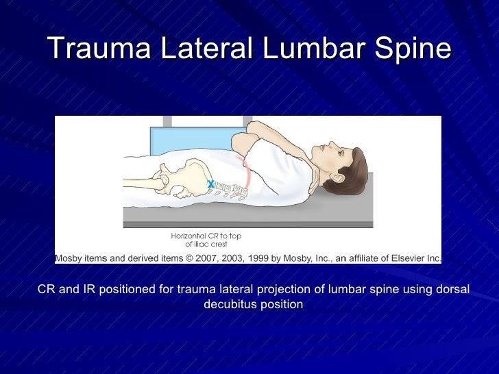 Trauma Lateral Lumbar Spine CR and IR positioned for trauma lateral projection of lumbar spine using dorsal decubitus posi...