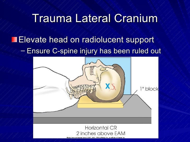 Trauma Lateral Cranium <ul><li>Elevate head on radiolucent support </li></ul><ul><ul><li>Ensure C-spine injury has been ru...