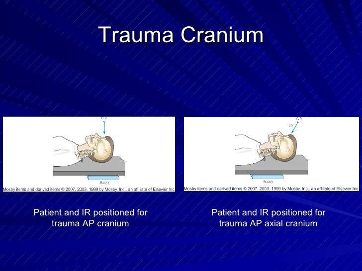 Trauma Cranium Patient and IR positioned for trauma AP cranium Patient and IR positioned for trauma AP axial cranium