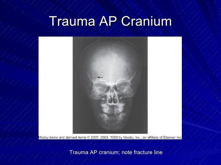 Trauma AP Cranium Trauma AP cranium; note fracture line