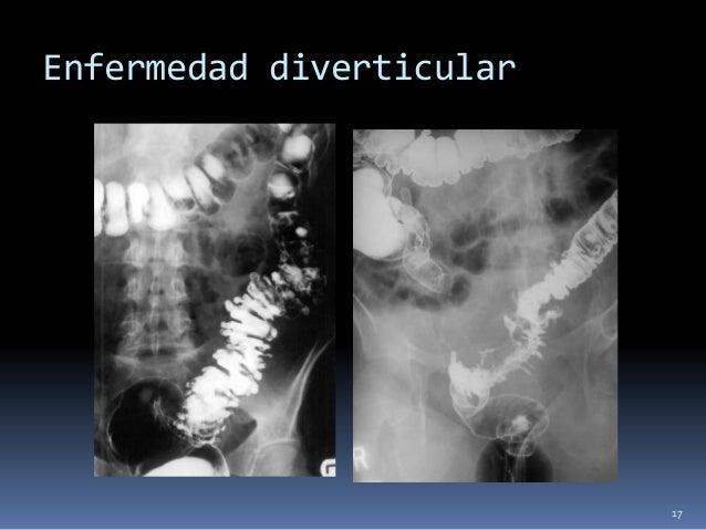 Pancreatitis  Toracicos  Derrame  Atelectasia  Elevacion diafragmatica  Abdominales.  Abdomen vacio  Distencion gas...