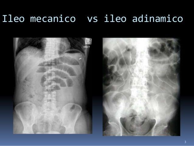 3 Ileo mecanico vs ileo adinamico